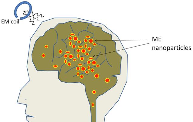 Эти магнитные частицы могут контролировать электрические сигналы в мозге