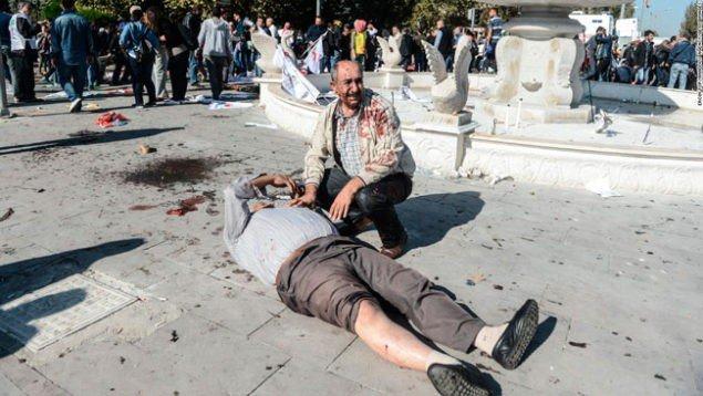 Вибухи в Анкарі – 86 вбито, 186 поранено (фото)