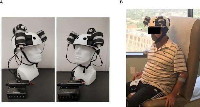 Магнитный шлем уменьшил смертельную опухоль в ходе первого в мире испытания